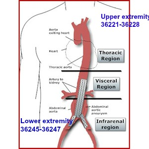 Coding Selective And Non Selective Catheter Placement Of