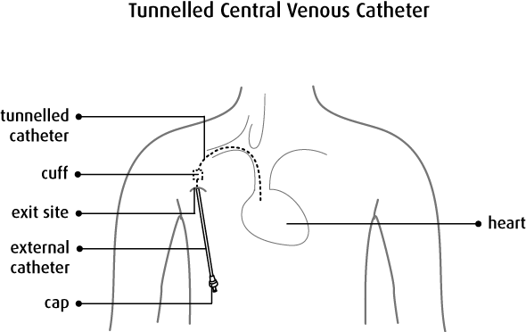 Superb tips for Tunneled Central Venous Catheter CPT codes  of Ultrasound abdominal cpt