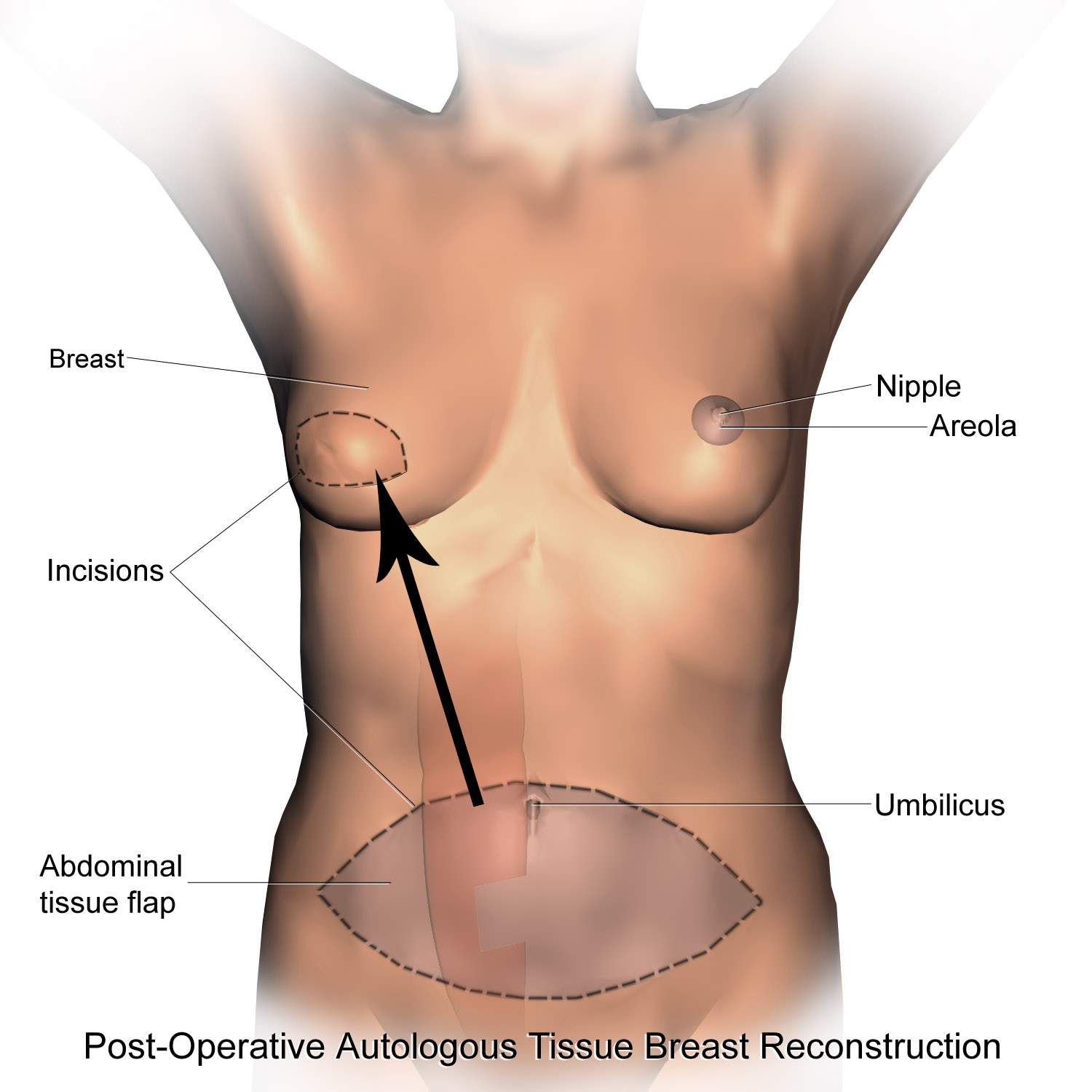 Breast Reconstruction After Radiation? Doctor